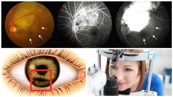 О контузии глазного яблока