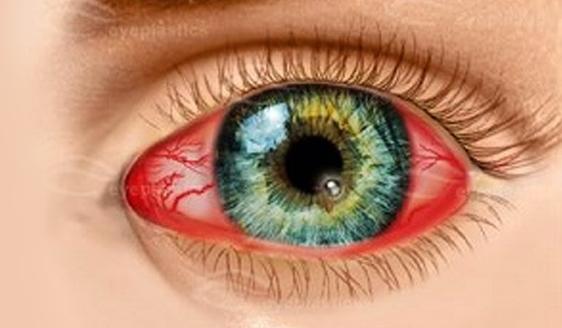 Признаки кератита глаза