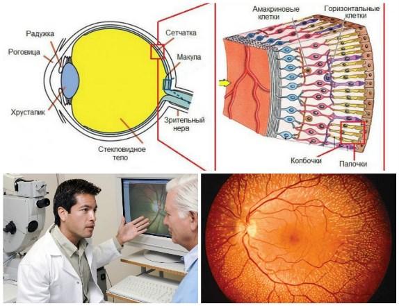 Сетчатка глаза и её нарушения