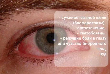 Некоторые симптомы кератита