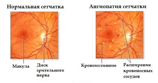 Симптоматика ангиопатии