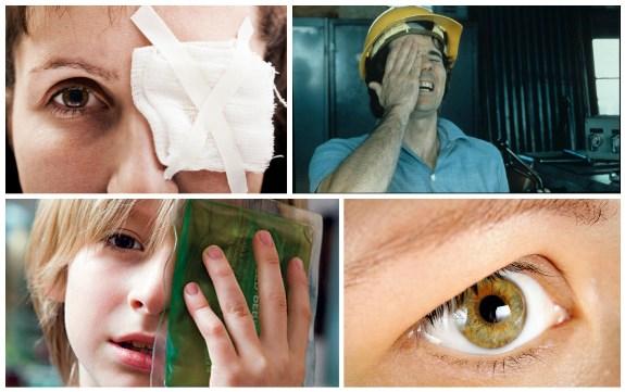 Различные травмы глаз