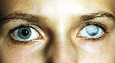 Лейкома левого глаза
