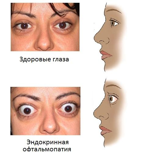 эндокринная офтальмопатия и здоровые глаза