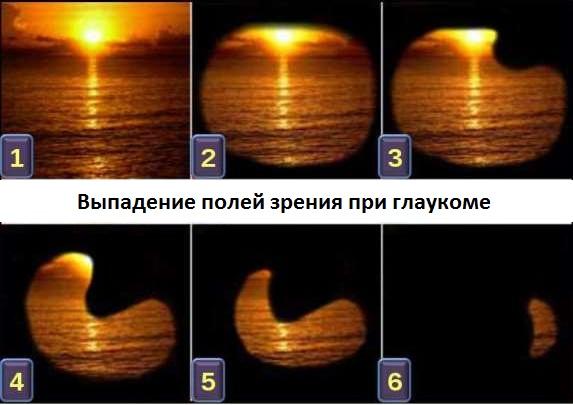 Выпадение полей зрения при глаукоме