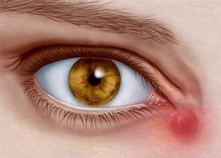 Воспаление из-за закупорки слезного канала