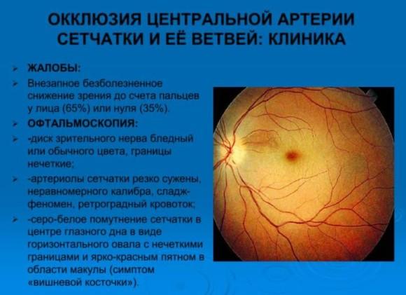 Эмболия центральной артерии сетчатки глаза