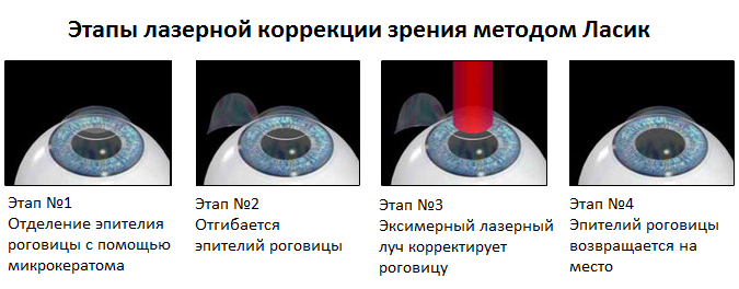 Этапы лазерной коррекции зрения методом Ласик
