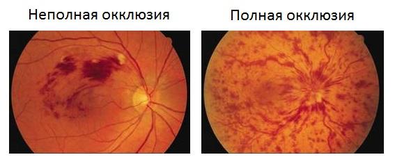 Полная и неполная окклюзия сетчатки глаза