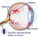 Что такое тромбоз ЦВС?