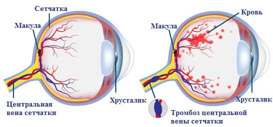 Схема тромбоза центральной вены сетчатки глаза